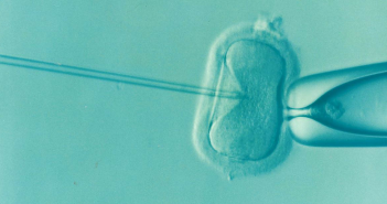Infertilité masculine: les 5 questions les plus fréquemment posées